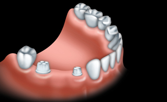With a traditional bridge, healthy teeth on each side of the missing tooth are prepared for crowns.