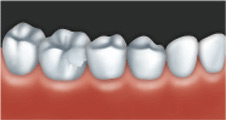 A crown can be used to restore a damaged tooth